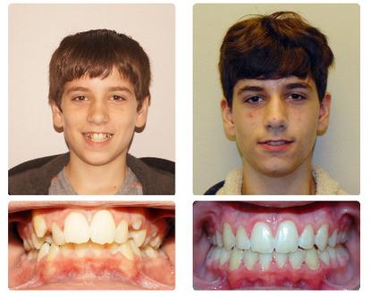 smile_transformation